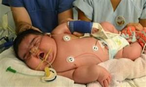 13-килограмово бебе