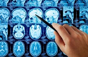 3-годишно изследване в МБАЛ-Русе под ръководството на проф. Трайков изяснява факторите за деменция след инсулт
