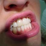 Скърцане със зъби нощем – бруксизъм