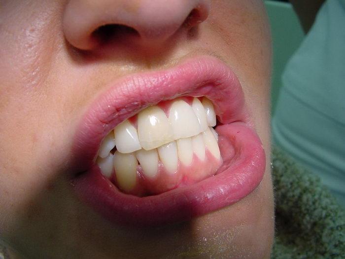 Скърцането със зъби се нарича още бруксизъм