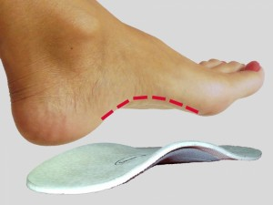 Използването на ортопедични стелки ще намали натоварването върху мускулите на краката