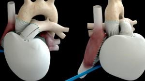 """Автономно изкуствено сърце, създадено от френската компания """"Карма"""", е имплантирано на пациент, страдащ от терминална сърдечна недостатъчност."""