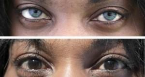 Лазер променя цвета на очите ни