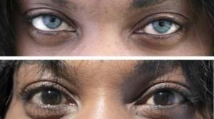 Лазер може да промени за  20 секунди пигмента на кафявите ви очи.