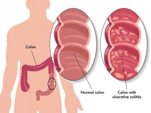 Според специалистите голяма част от болните получават кръвоизливи или други усложнения, защото преди това са консумирали храни, богати на целулоза като боб, леща, зеле.