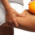 Целулитът – причинен от мускулна атрофия