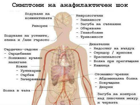 Анафилаксия – фаталната алергична реакция