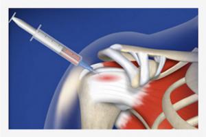 Лечението с плазма в областта на ортопедията е едно от най-ефекасните.