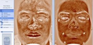 Капилярната мрежа на нашата кожа.