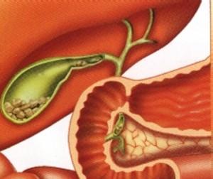 При холелитиаза правилното хранене е от изключително значение
