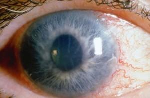 Глаукомата е сложно заболяване, при нея се уврежда зрителният нерв следствие на повишено вътреочно налягане.