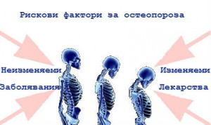Тревожни данни - 95% от българите с остеопороза не се лекуват.