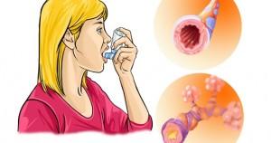 Хранене при бронхиална астма