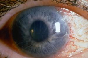 """ДКЦ """"Софиямед"""" се включва в Световната седмица за борба с глаукомата, която тази година се отбелязва от 8-ми до 14-и март."""