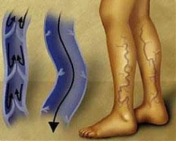 Смята се, че в съвременния свят от разширени вени страдат около 50 % от хората.
