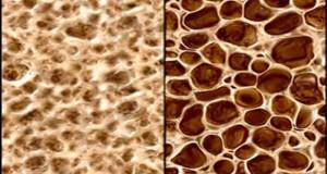 317 хиляди българки са с остеопороза