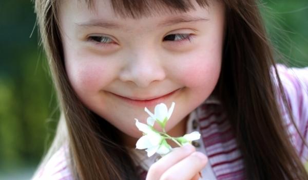 Photo of Правят фотосесия на малчугани и пораснали деца със Синдром на Даун за благотворителна изложба