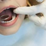 Въпроси и отговори за зъбните силанти