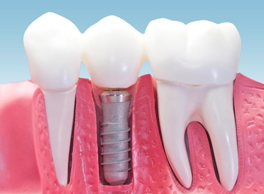 Зъболекарите предупреждават, че две са основните причини за загубата на зъбите – нелекувани кариеси и пародонтит.