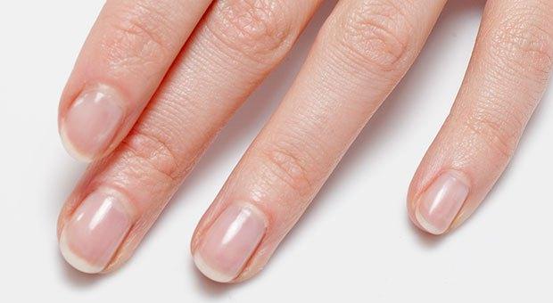 Photo of 10 неща, които ноктите казват за нашето здраве