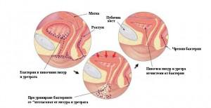 Зимата е сезонът на най-разпространеното урологично заболяване – цистит