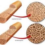 На 20 октомври отбелязваме Световния ден на остеопороза