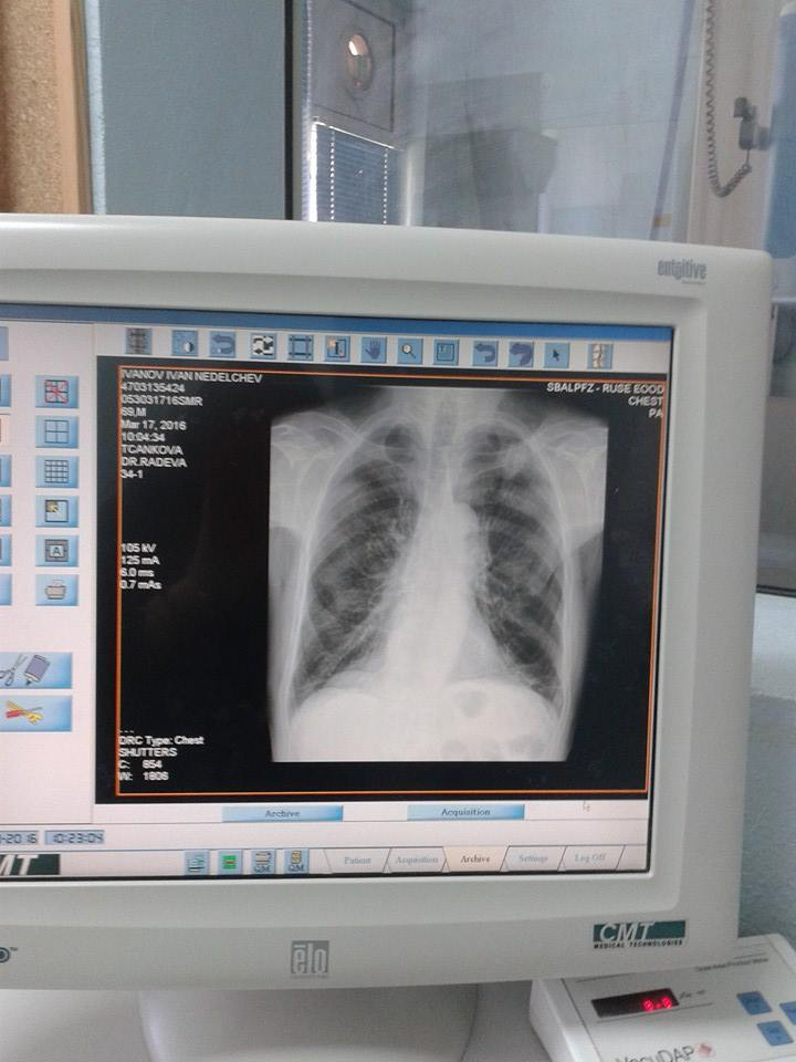 Photo of Отворени врати за определяне на риска от туберкулоза в Русенската белодробна болница