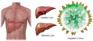 Световния ден за борба с хепатит отбелязваме на 28 юли