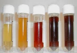 Photo of Какво казва урината за нашето здраве