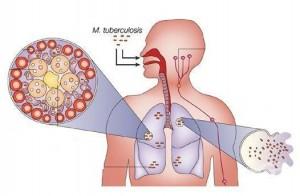 Туберкулозата е коварно заболяване