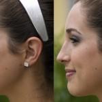 Нехирургичната Ринопластика като един модерен и алтернативен подход за корекция на носа