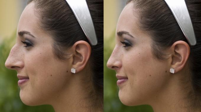 Photo of Нехирургичната Ринопластика като един модерен и алтернативен подход за корекция на носа