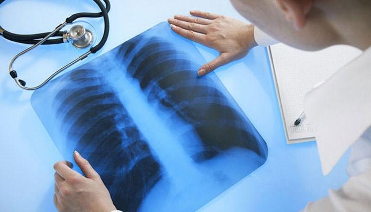 Photo of Две седмици безплатна профилактика за риска от туберкулоза
