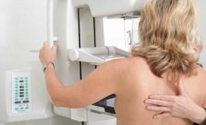 Рентгеновите снимки на гърдите не са безопасни.