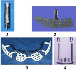 С Positioner се работи изключително лесно и той е приложим също така при позиционирането на обичайните имплантати.