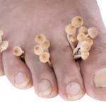 Есента е пиковият сезон за гъбичките по краката – как да ги преборите
