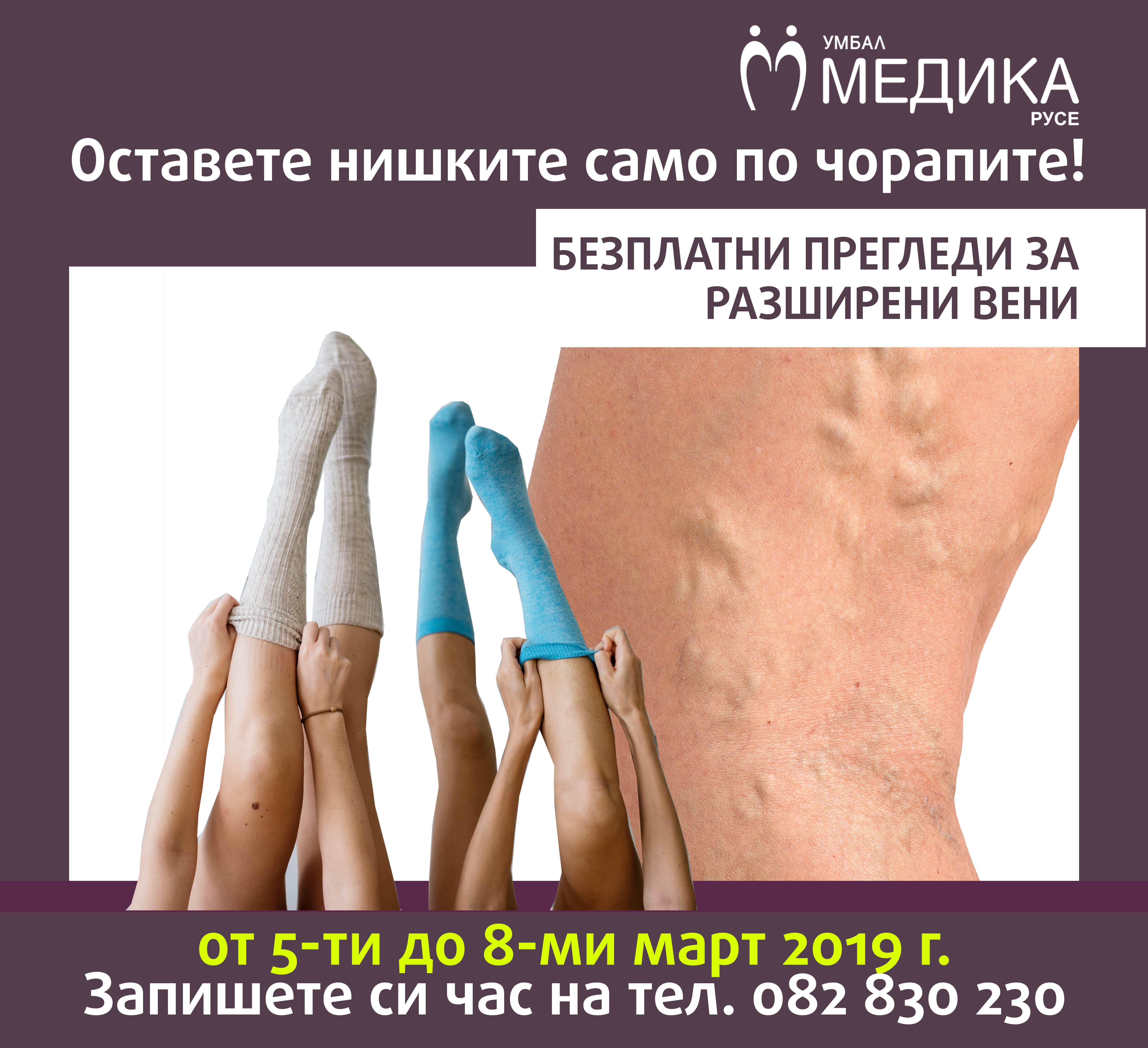 Photo of Медика стартира кампания за безплатни прегледи за разширени вени