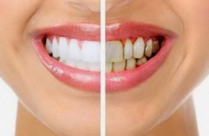 Мнозина подценяват зъбния камък, като смятат, че той е само козметичен дефект.