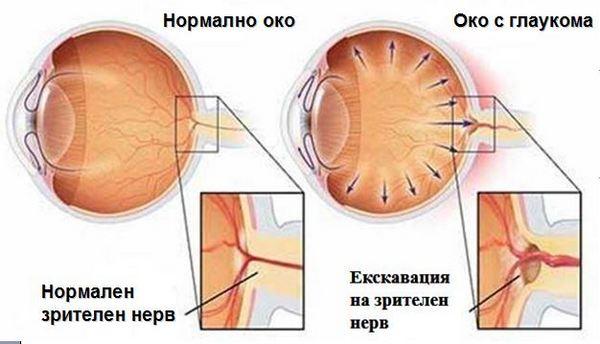 12 март – Световен ден за борба с глаукомата