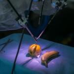 Майчин дом въвежда безкръвни операции с робот Да Винчи