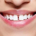 Три решения за премахване на разстоянието между зъбите