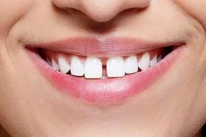 Неправилната функция на езика, при която той избутва зъбите напред, също води до тяхното раздалечаване.
