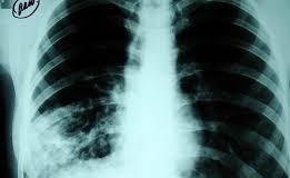 Отново безплатна профилактика за риска от туберкулоза в белодробната поликлиника