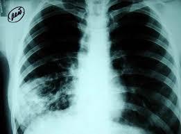 Photo of Отново безплатна профилактика за риска от туберкулоза в белодробната поликлиника