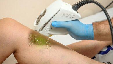 Photo of Лазерните терапии дават отличен козметичен резултат при третирането на разширени вени